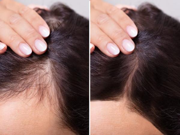 الحل النهائي لتساقط الشعر