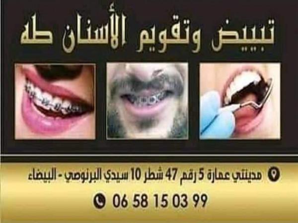 blanchiment-des-dents-et-orthodontie